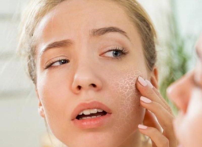Bật mí cách trị khô da mặt ở bà bầu hiệu nghiệm nhanh chóng